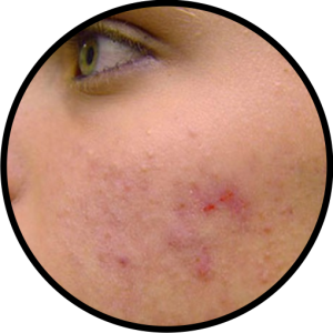 acne treatment hampton quispamsis sussex rothesay